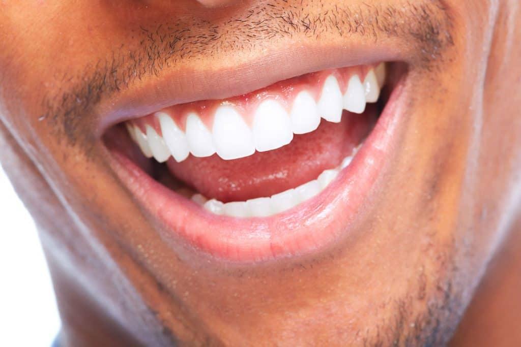 sonrisa de hombre
